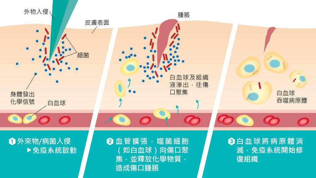 氫分子 發炎