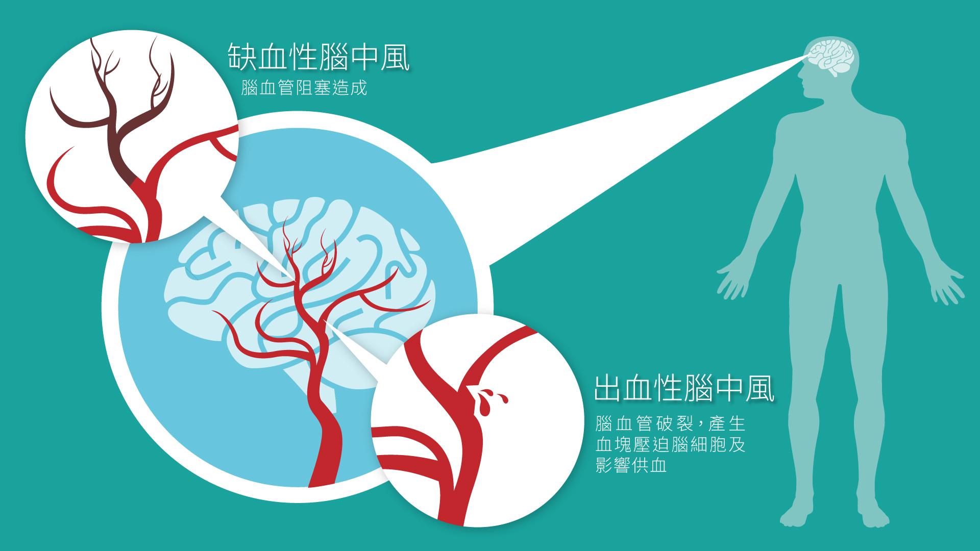 吸氫氣 腦中風