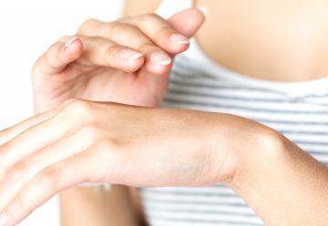 氫氣舒緩異位性皮膚炎研究