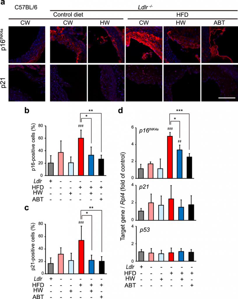 氫氣對於延緩血管內皮細胞老化具有明顯的效果
